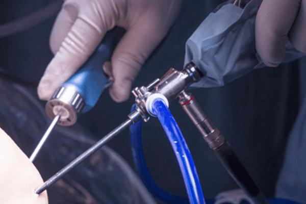 Артроскопическая хирургия
